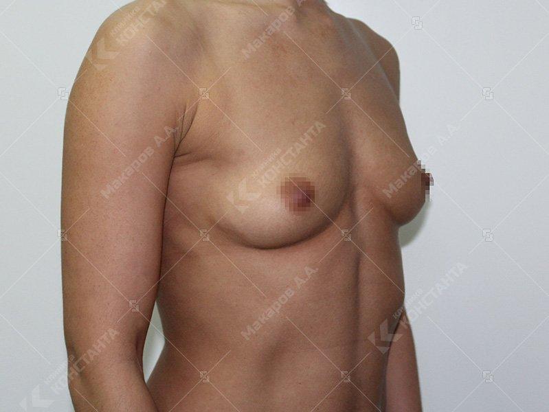 Тренажеры для увеличения мышц груди