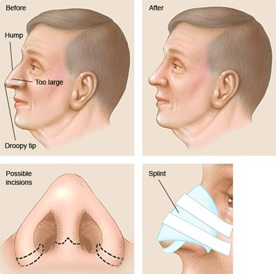 Пластическая хирургия нос пластическая хирургия в даляне
